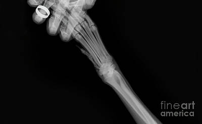 Pet Care Photograph - X-ray Of A Dog's Front Left Leg by Yael Rosen