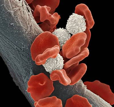 Leukaemia Blood Cells, Sem Art Print by Steve Gschmeissner