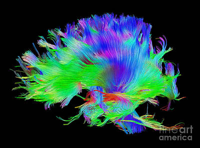 Photograph - Fiber Tracts Of The Brain, Dti by Living Art Enterprises