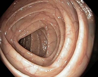 Healthy Colon, Large Intestine Art Print by Gastrolab