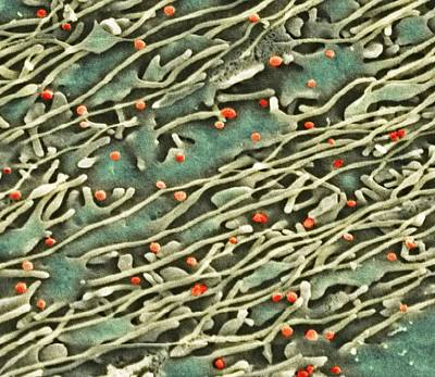Hepatitis C Viruses, Tem Art Print by Thomas Deerinck, Ncmir