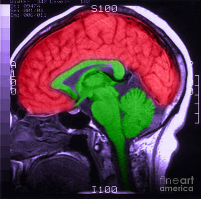 Colorized Image Photograph - Mri Of Normal Brain by Science Source