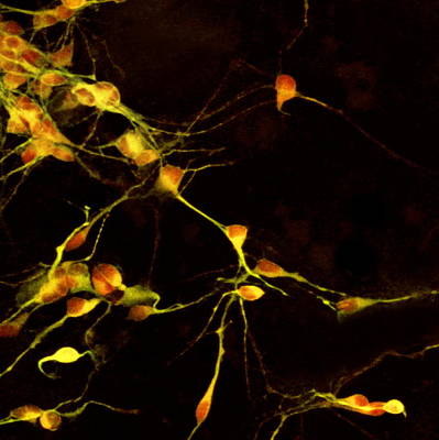 Nerve Cell Growth Art Print by Francois Paquet-durand
