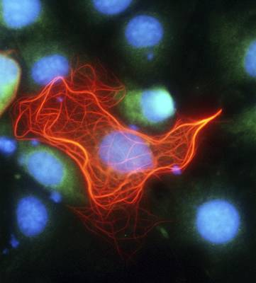 Green Monkey Photograph - Cell Structure, Fluorescent Micrograph by Robert Mcneil, Baylor College Of Medicine