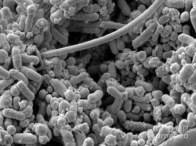 Streptococcus Pyogenes Art Print by Scimat