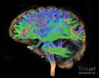 Photograph - Brain, Fiber Tractography Image by Scott Camazine