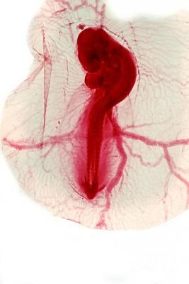 Chicken Embryo, Light Micrograph Art Print