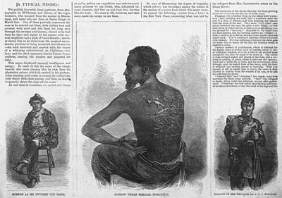 Slavery Photograph - An African American Runaway Slave Named by Everett