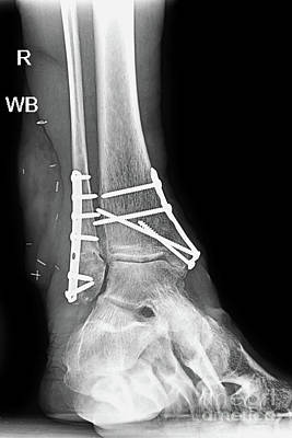 Photograph - Ankle Fracture Metal Plates And Screws by Olga Hamilton