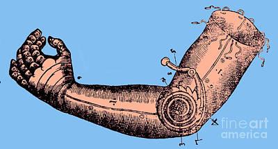 Artificial Arm Designed By Ambroise Art Print