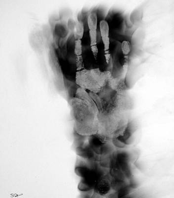 Pyrography Pyrography - Artist's Hand X-ray by Abstract Angel Artist Stephen K