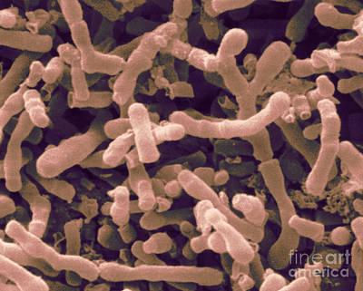 Bifidobacterium Longum, Sem Art Print