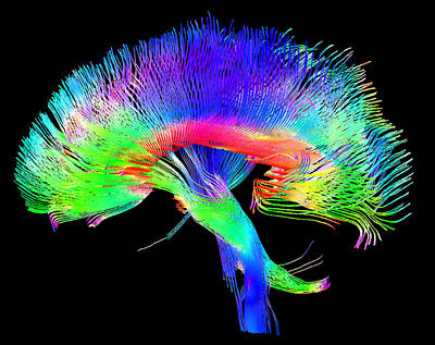 Human Body Photograph - Brain Pathways by Tom Barrick, Chris Clark, Sghms