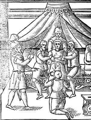 Cesarean Section, 17th Century Art Print by Science Source