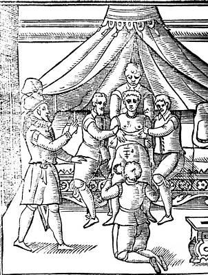Cesarean Section, 17th Century Art Print