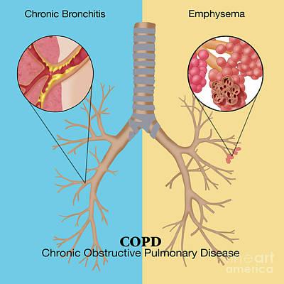 Chronic Obstructive Pulmonary Disease Art Print by Monica Schroeder