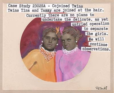 Painting - Conjoined Hair Twins Medical Experiment  by JoLynn Potocki