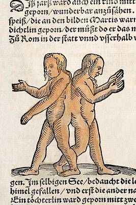 Conjoined Siamese Twins, 1557 Art Print