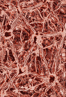 Modern Microscopic Art Painting - Contagion V2 by Kevin Trow
