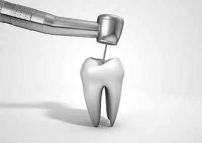 Work Tool Digital Art - Dentists Drill And Tooth by Allan Swart