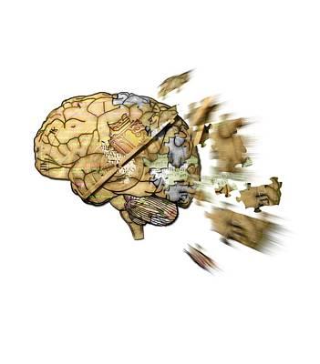 Exploding Head Digital Art - Disintegrating Brain by Ruta Naujokiene