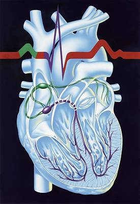 Electrical Conduction In The Heart, Artwork Art Print by John Bavosi