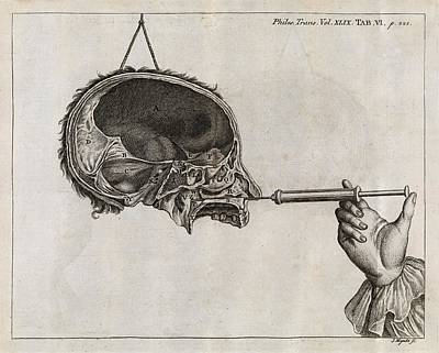 Philosophical Photograph - Eustachian Tube Syringing, 18th Century by Middle Temple Library