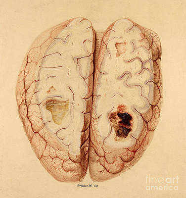 Extravasated Blood, Brain Art Print by Wellcome Images