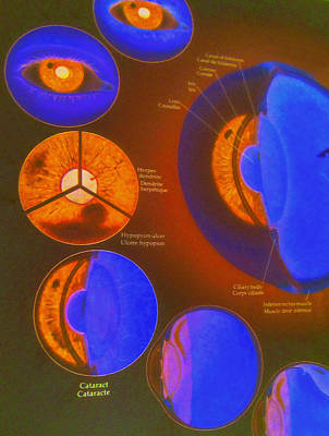 Ophthalmology Digital Art - Eye Deology by Randall Weidner