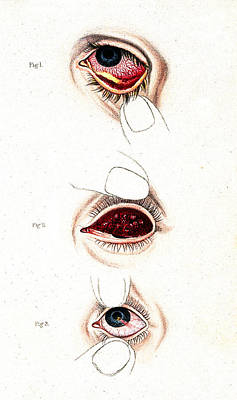 Bloodshot Photograph - Eye Inflammations, Historical by Wellcome Images