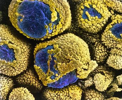 Stein Photograph - False-colour Sem Of Polycystic Ovary by Professors P.m. Motta & S. Makabe