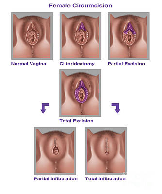 Vagina Art Photograph - Female Genital Mutilation, Illustration by Gwen Shockey