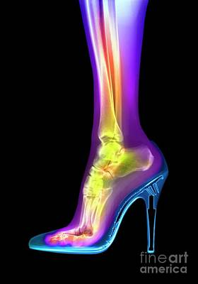 Photograph - Foot In High Heel Xray by Spl