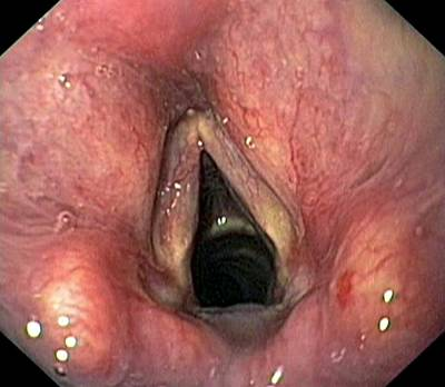 Ent Photograph - Healthy Larynx by Gastrolab