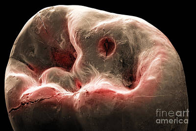 Photograph - Human Tooth, Sem by Ted Kinsman