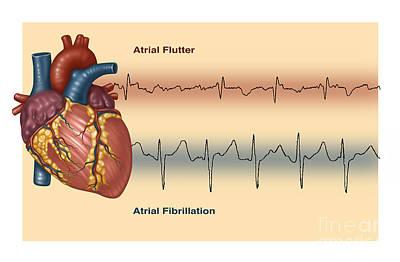 Fluttering Photograph - Illustration Of Irregular Heartbeats by Gwen Shockey