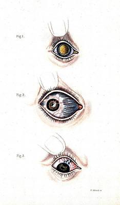 Bloodshot Photograph - Inflamed Bloodshot Eyes, Illustration by Wellcome Images