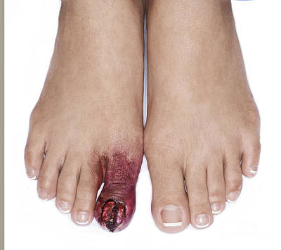 Photograph - Inured Toe Special Effects Make Up Detail by Jacek Malipan