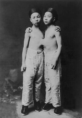 Rire Photograph - Korean Siamese Twins Standing by Everett
