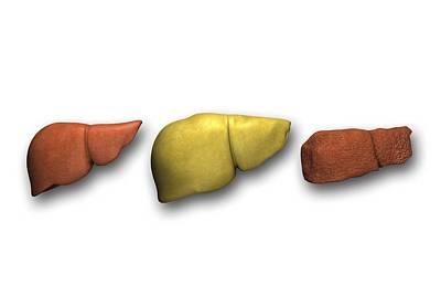 Liver: Normal, Fatty, Cirrhotic Art Print by Pasieka