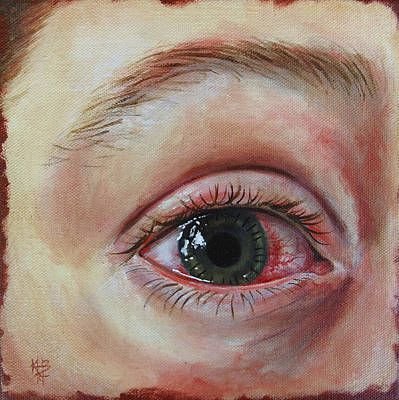Painting - Mike's Cornea Transplant by Kirsten Beitler