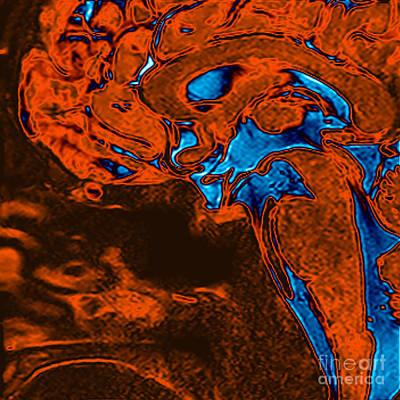 Colorized Image Photograph - Normal Brain, Mri by Living Art Enterprises