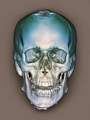Medical Scan Photograph - Normal Skull, 3d Ct Scan by Zephyr