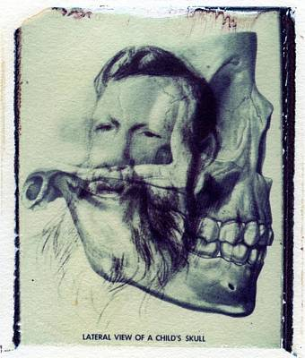 Polaroid Transfer Skull Anatomy Teeth Skeleton Beard Art Print