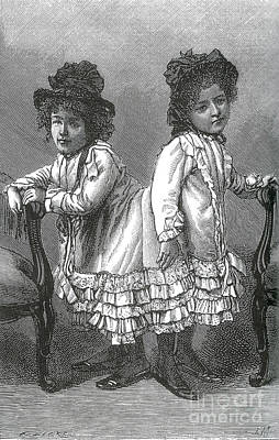 Rosa And Josefa Blaek, Conjoined Twins Art Print by Science Source