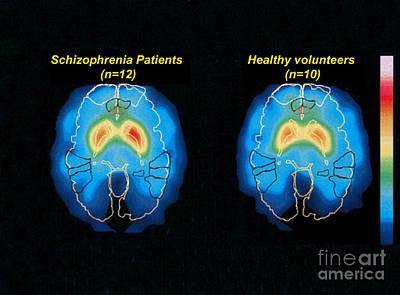 Schizophrenia And Normal Brain, Pet Art Print