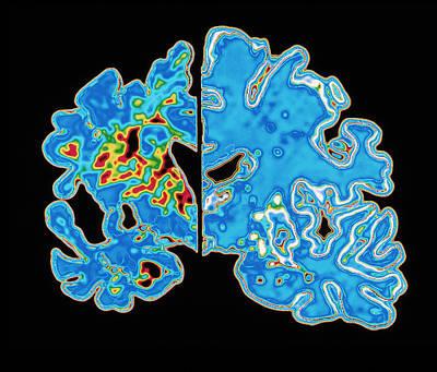 Sectioned Brains: Alzheimer's Disease Vs Normal Art Print by Pasieka