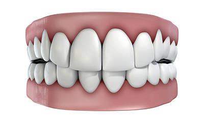 Freshness Digital Art - Teeth Set Isolated by Allan Swart