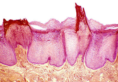 Tongue Papillae, Light Micrograph Art Print