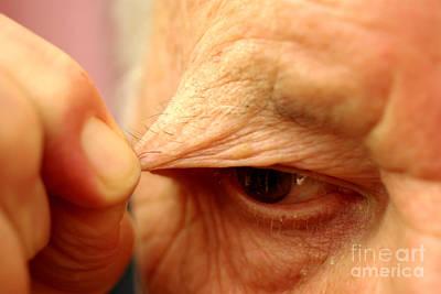 Compulsion Photograph - Trichotillomania In Elderly Man by Scimat